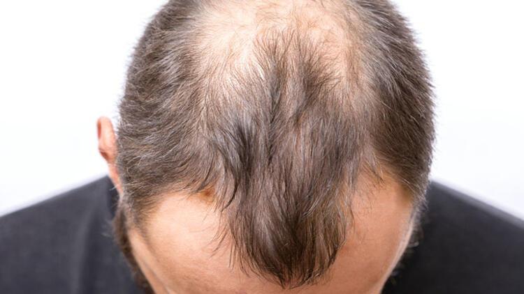 Saç dökülmesine yol açan sebepler nelerdir