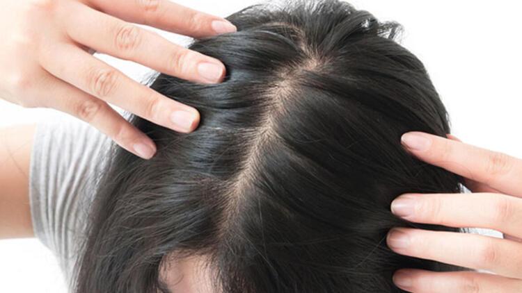 Kovid-19 sonrası saç dökülmesi neden olur, nasıl tedavi edilir