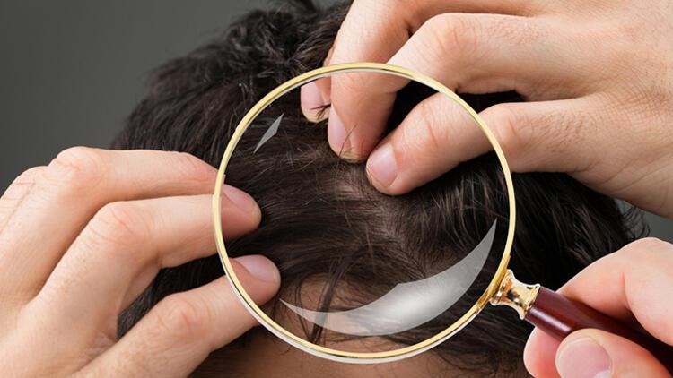 Koronavirüs sonrası saçların yenilenmesi için bunları tüketin